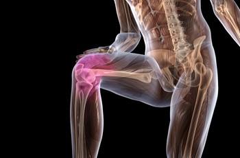 Артроз - одна из самых тяжелых болезней суставов, при отсутствии...