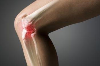 Лечение артроза коленного сустава жизненно необходимое действие, так как...